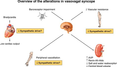sindrome vaso vagale syncope causes diagnosis heartupdate
