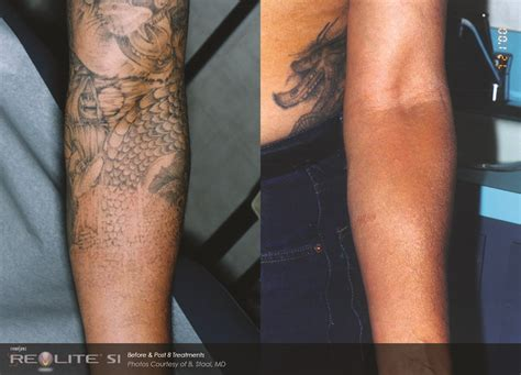 revlite tattoo removal removal pro clinic south east