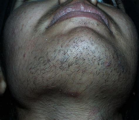 excess pubic hair hirsutism in area hirsutism plastic surgery key related
