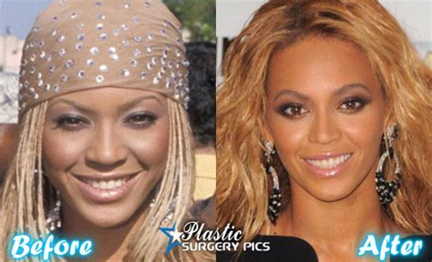 beyonce plastic surgery before and after pictures