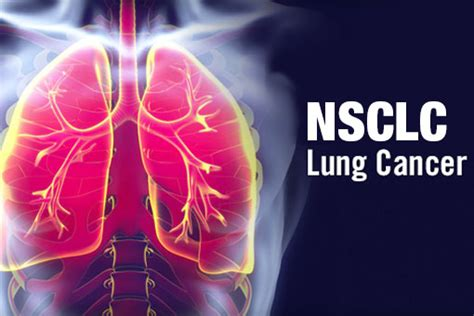 reuma test positivo tumore polmone alk fda approva ceritinib in prima