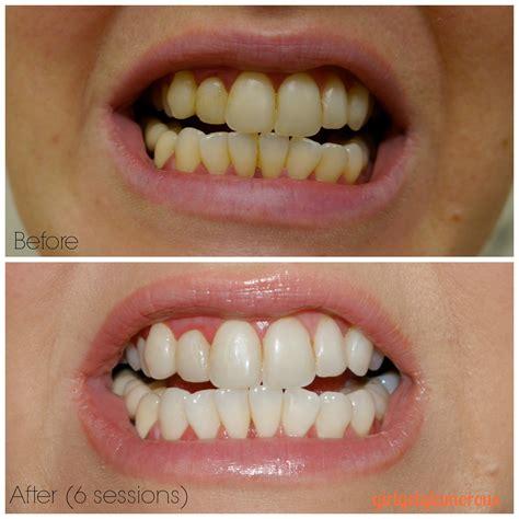 review  smile brilliant teeth whitening custom trays