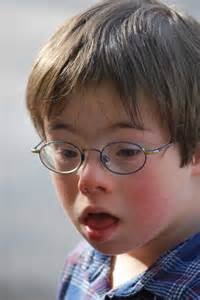 Downs syndrome memes 361 results picture