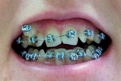dental braces teeth braces colors dental