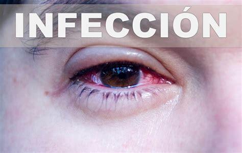 remedios caseros para curar infeccion vajinal fotos remedios caseros para las infecciones oculares como