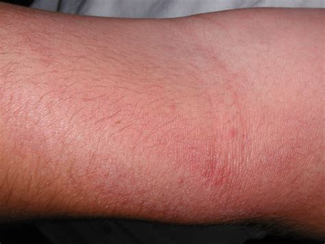 itchy rash on arms breeds picture