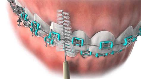 patient education hardy pediatric dentistry orthodontics