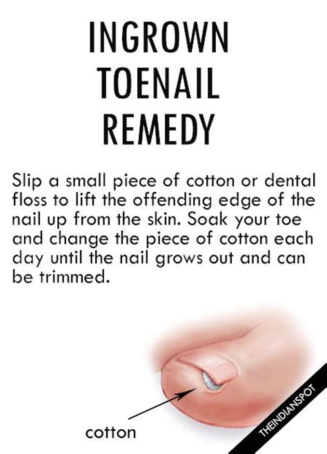tea tree oil ingrown toenail ingrown toenail best 25 ingrown toe nail ideas on pinterest doterra tea