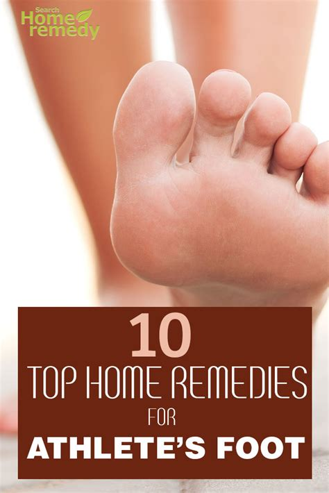 10 top home remedies for athlete s foot search home remedy