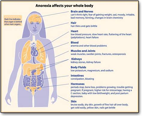 sectioned for anorexia anorexia disability claims help information representation