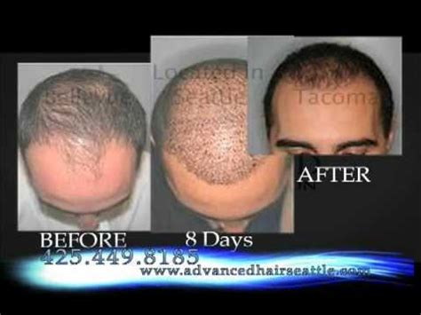What Is The Cost Of Neografting The Hair Line | fue hair transplant advanced fue in seattle 425 449