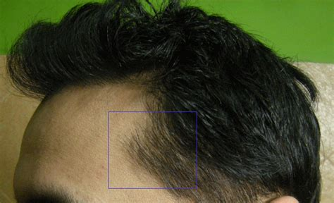 hair losing pigment at temples image gallery temple hair
