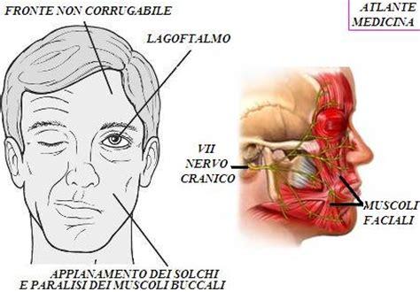 tumore orecchio interno sintomi patologie nervo facciale