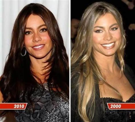 sandra vergara dds sofia vergara plastic surgery before after