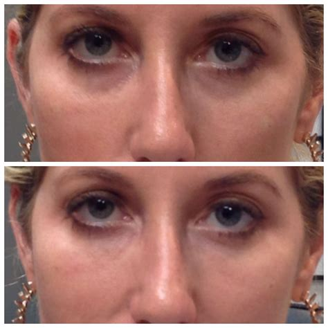 Do They Make Botox For Bags by Beautiful 30 Year After 1ml Restylane Silk Using A