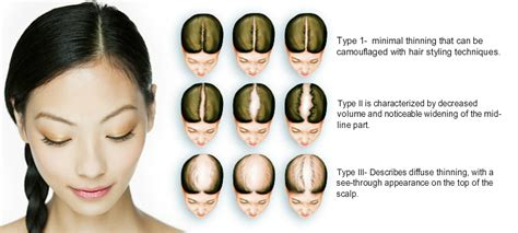 Types Of Hair Loss In Females by Frequently Asked Question For Hair Transplant