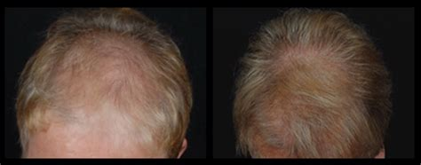 hair restoration hair transplant neograft orlando hair replacement orlando hair restoration florida