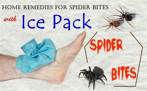 16 home remedies for spider bites you should