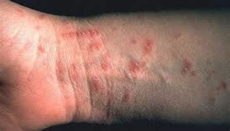 Scabies Treatment by Can Scabies Kill Or Really Make You Sick If You Had Them