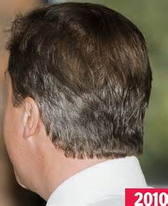 hair style temple bald spots curse of the pms david cameron is going grey at a record