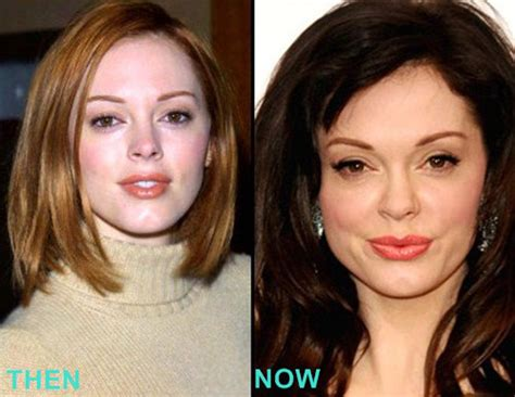 rose tarlow plastic surgery rose mcgowan plastic surgery before and after lovely