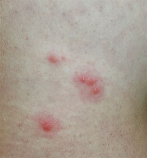 are bed bug bites itchy my bed bug bites on right side of my waist there s more