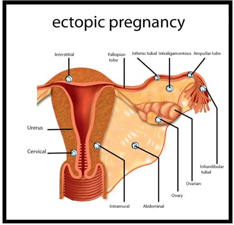 ultimate guide  deal  ectopic pregnancy