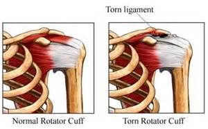 common bench press injuries rotator cuff exercises for rehabing shoulder injuries