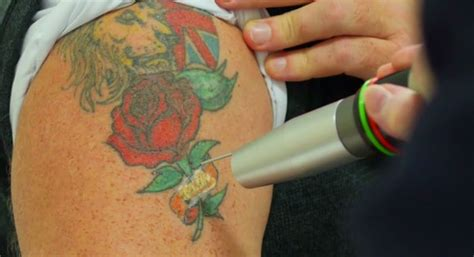 laser tattoo removal for fernly residents tattoo removal