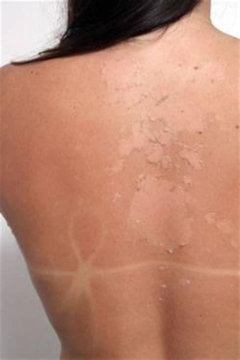 diode laser hair removal birmingham epilation