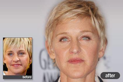 celebs who havent had neck lifts chatter busy ellen degeneres plastic surgery