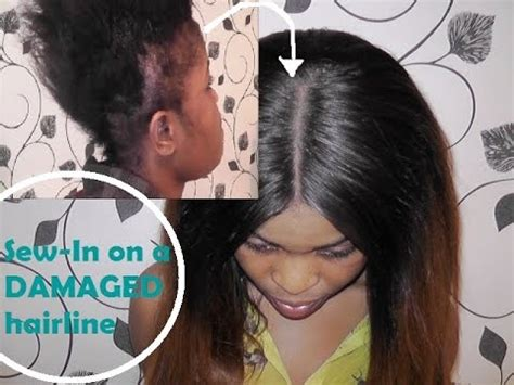 hair style for people with no edges sew in on damaged hairline how i do it youtube