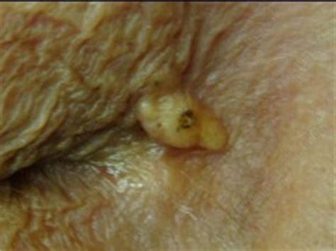 gonfiore labbra interne formazioni cistiche operate in soft surgery