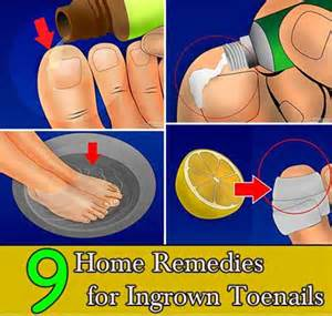 home remedies for ingrown toenail 9 home remedies for ingrown toenails
