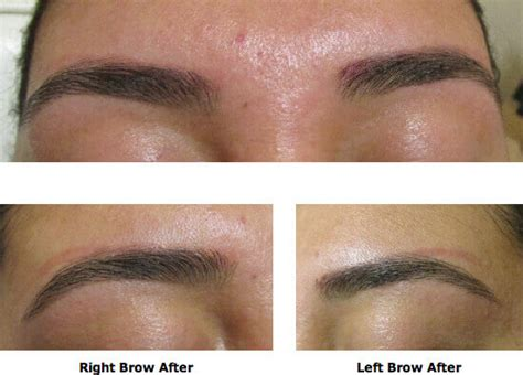 eyeliner tattoo removal sydney permanent makeup tattoo eyebrows life style by