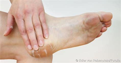schmerzen mittelfuß innen fu 223 pilz symptome erkennen netdoktor de