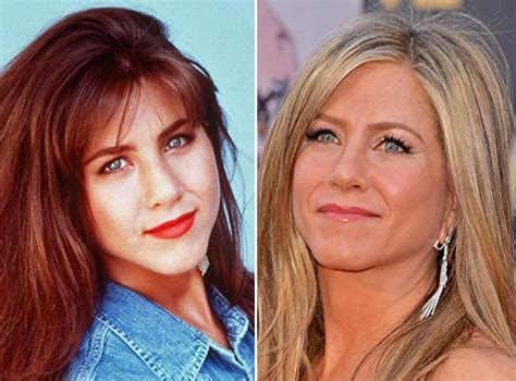 Did Aniston Get Implants by Best 25 Aniston Plastic Surgery Ideas On