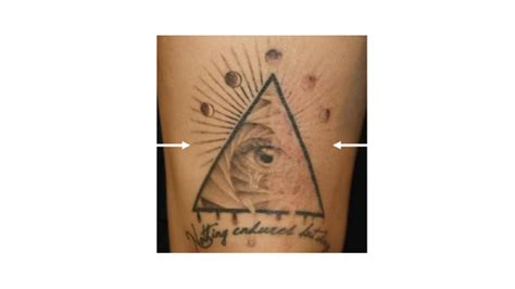 tattoo removal milwaukee laser removal evolvmd laser removal