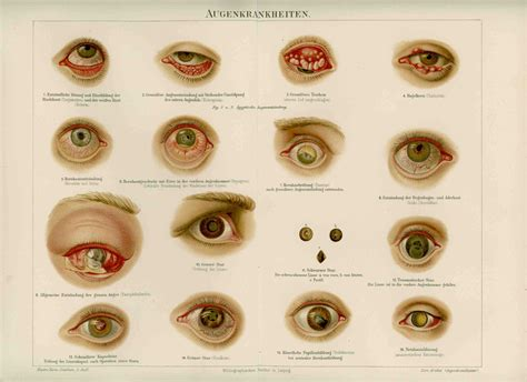 eye problems pictures eye diseases