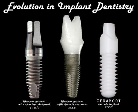 100 ceramic dental implants ceraroot zirconia dental implant gt 100 ceramic