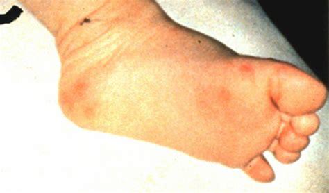 hand foot mouth disease rash untitled document www meddean luc edu