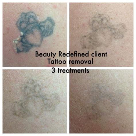 dangers of tattoo removal redefined aesthetic clinic removal