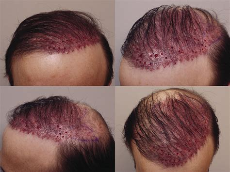 bad hair transplants botched hair transplant surgery om hair