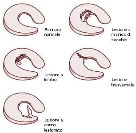 lesione menisco interno sintomi lesioni dei menischi fisioterapia a casa