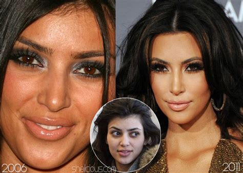 kim kardashian plastic surgery before after pictures 2015 kim kardashian before nose surgery chemical peels botox