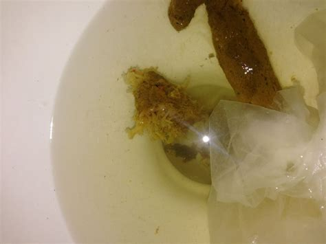 Fungus In Stool Treatment by Candida Or Parasite On Curezone Image Gallery