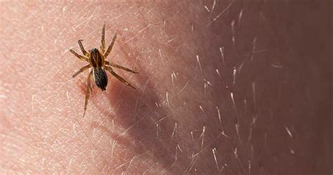 Do House Spiders Bite by Poisonous Spider Bite Symptoms Baptist