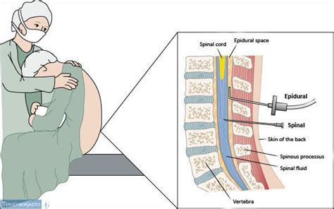 Section Epidural Or Spinal Block by Image Gallery Epidural Block