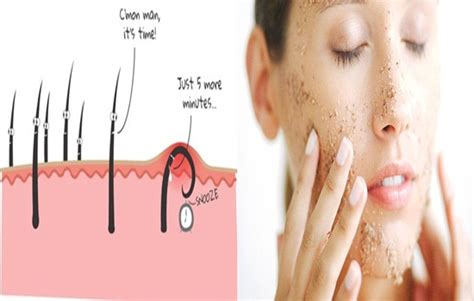 how can you get rid of ingrown hair on private place how to get rid of ingrown hair hair removal