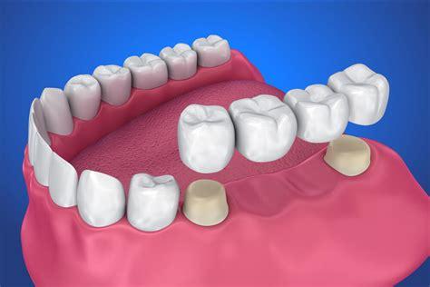 ponti dentali mobili ponti dentali tutto quello devi sapere family dent